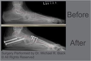 Flat Feet Surgery by Michael R. Black, DPM
