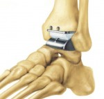 Foot and Ankle showing placement of the STAR ankle replacement device